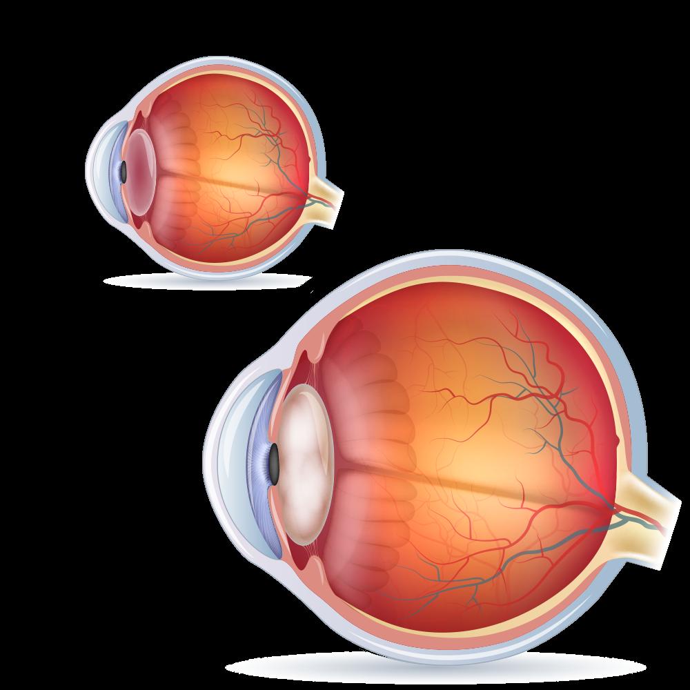 Cataract Surgery Sydney